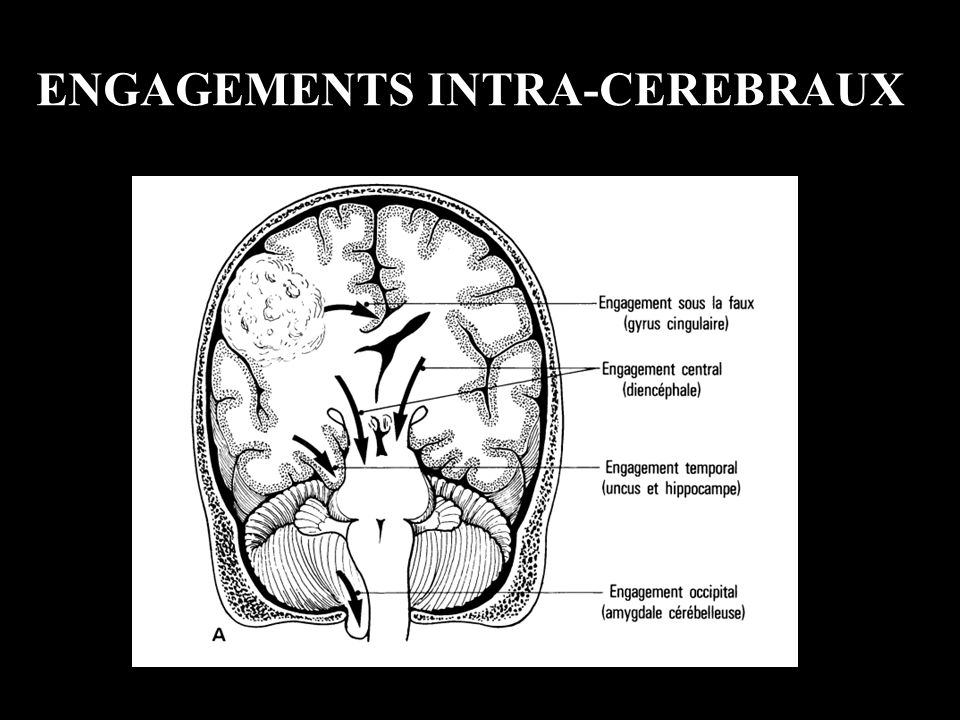 ENGAGEMENTS INTRA-CEREBRAUX