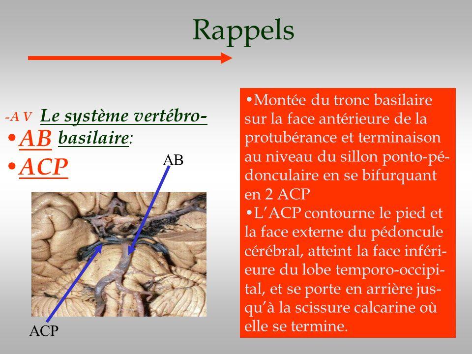 Rappels AB ACP Le système vertébro-basilaire: