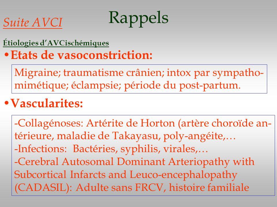 Rappels Suite AVCI Etats de vasoconstriction: Vascularites: