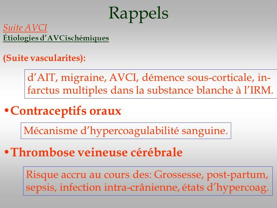 Rappels Contraceptifs oraux Thrombose veineuse cérébrale