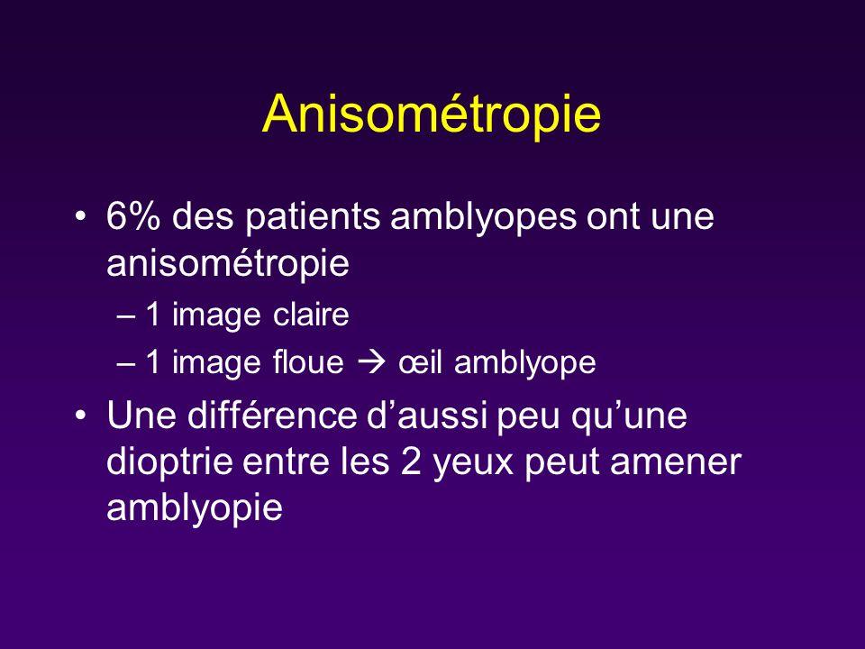 Anisométropie 6% des patients amblyopes ont une anisométropie