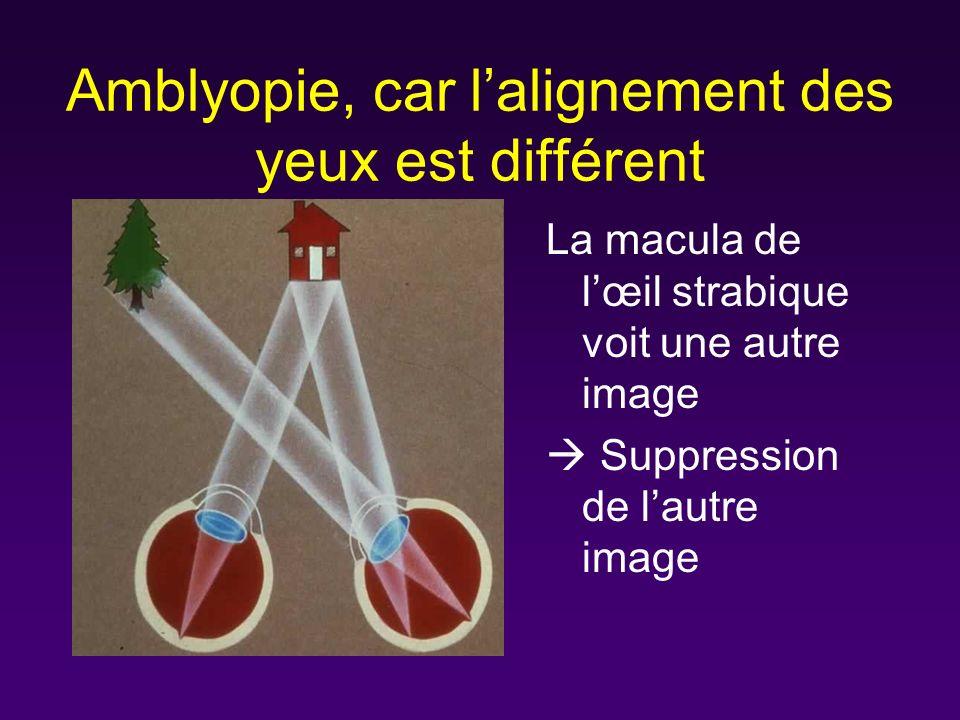 Amblyopie, car l'alignement des yeux est différent