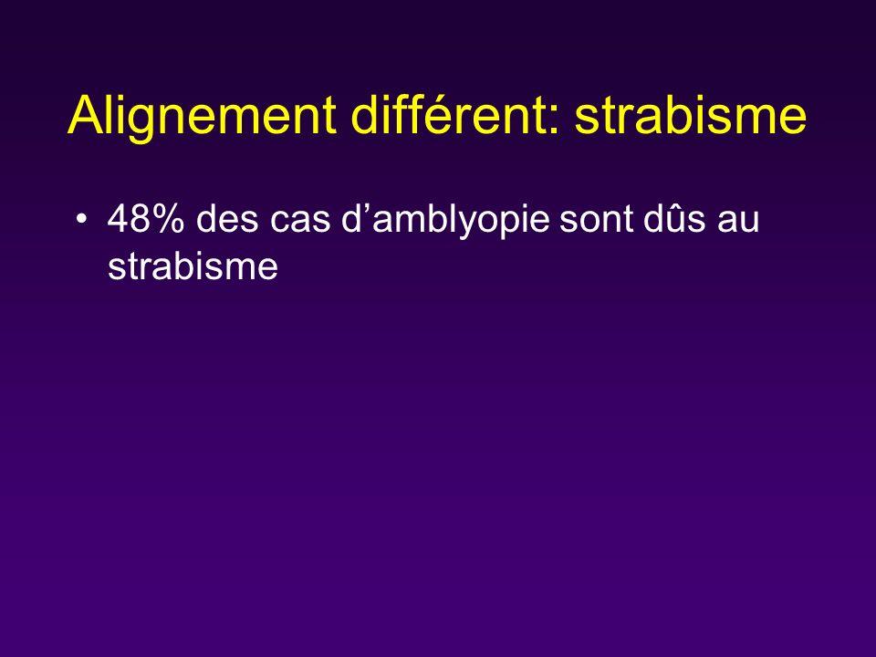 Alignement différent: strabisme