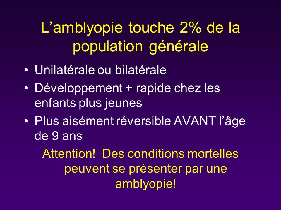 L'amblyopie touche 2% de la population générale
