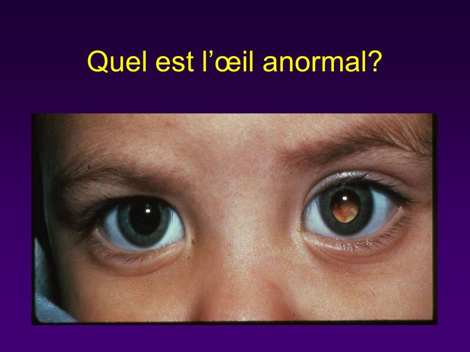Quel est l'œil anormal