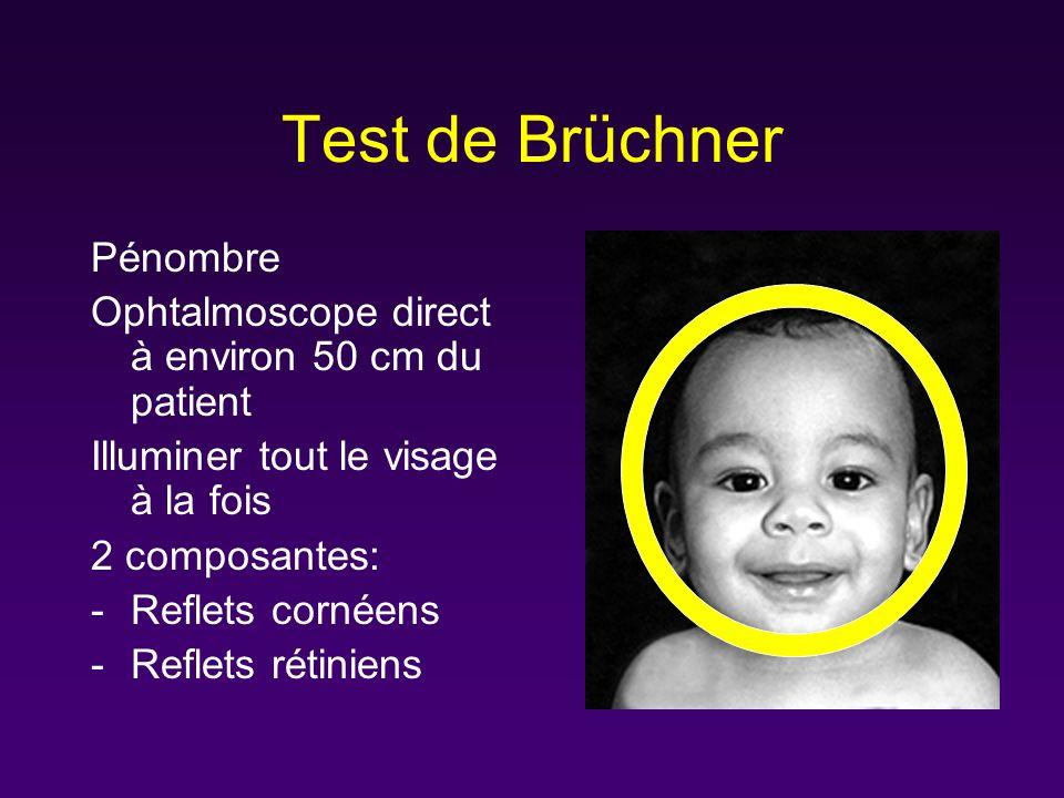 Test de Brüchner Pénombre