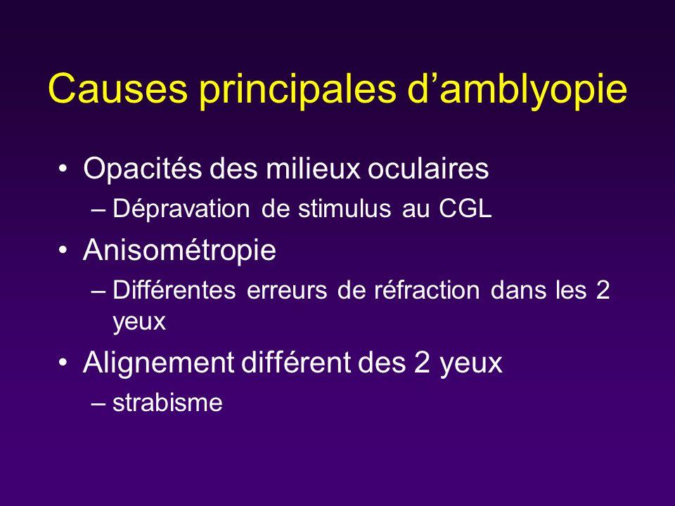 Causes principales d'amblyopie