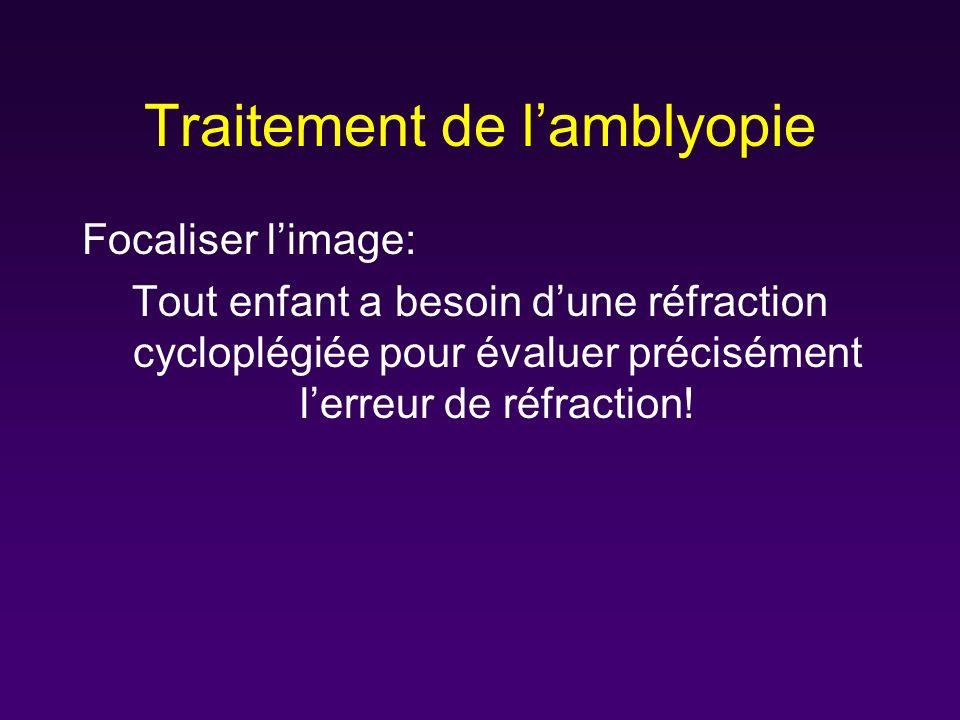 Traitement de l'amblyopie