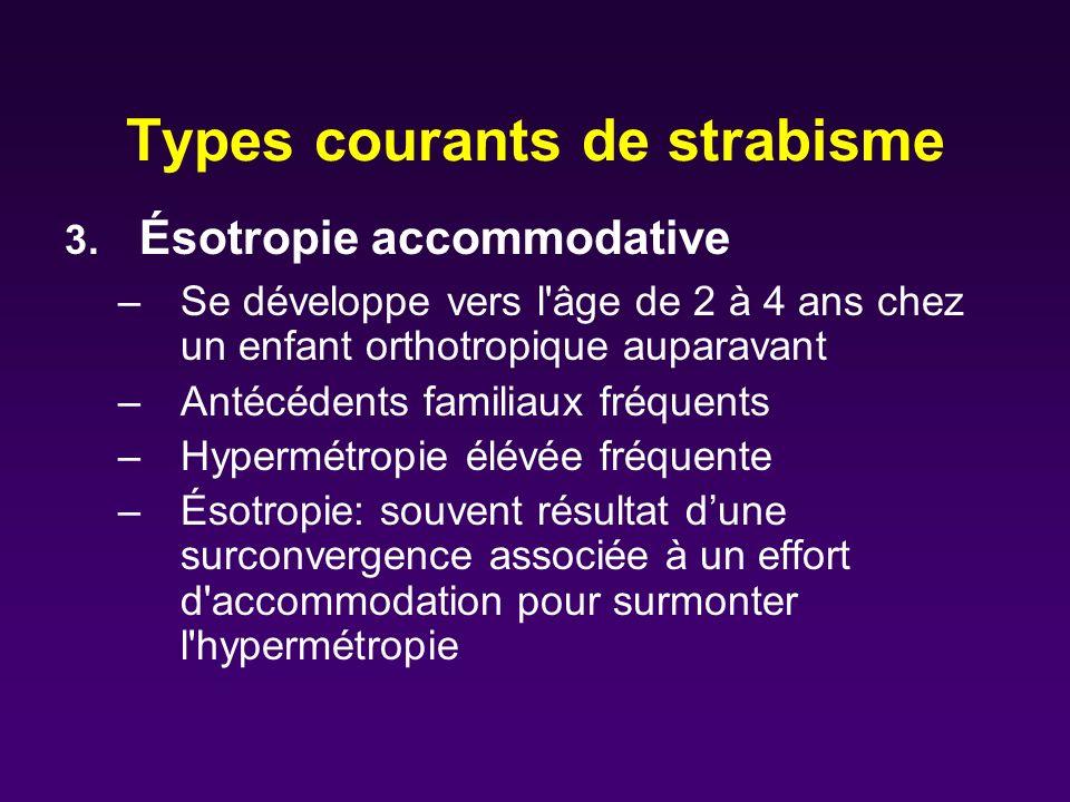 Types courants de strabisme