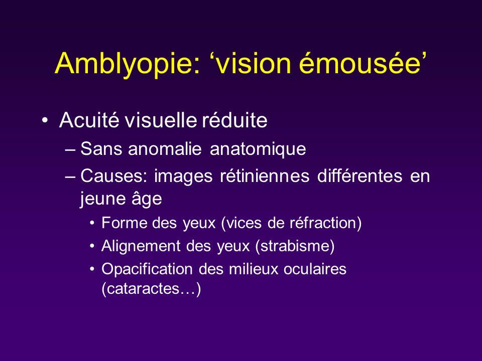 Amblyopie: 'vision émousée'