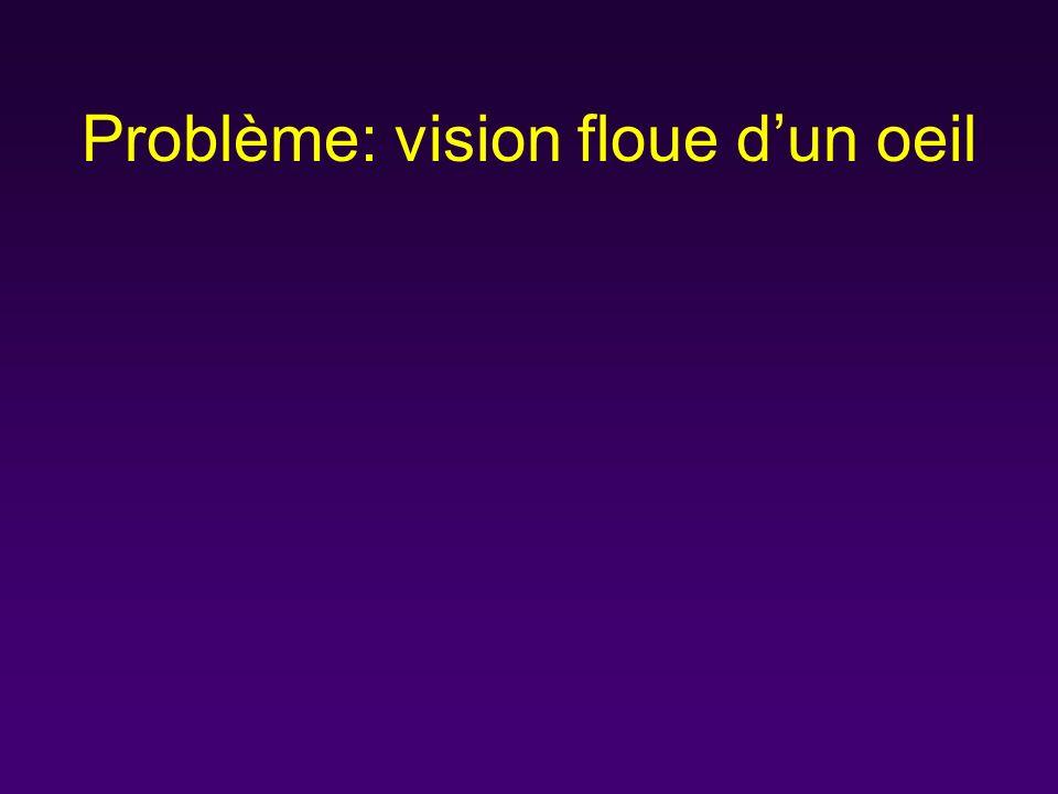 Problème: vision floue d'un oeil