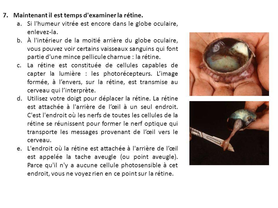 Dissection de l il de veau ppt t l charger - Couche du globe oculaire ...
