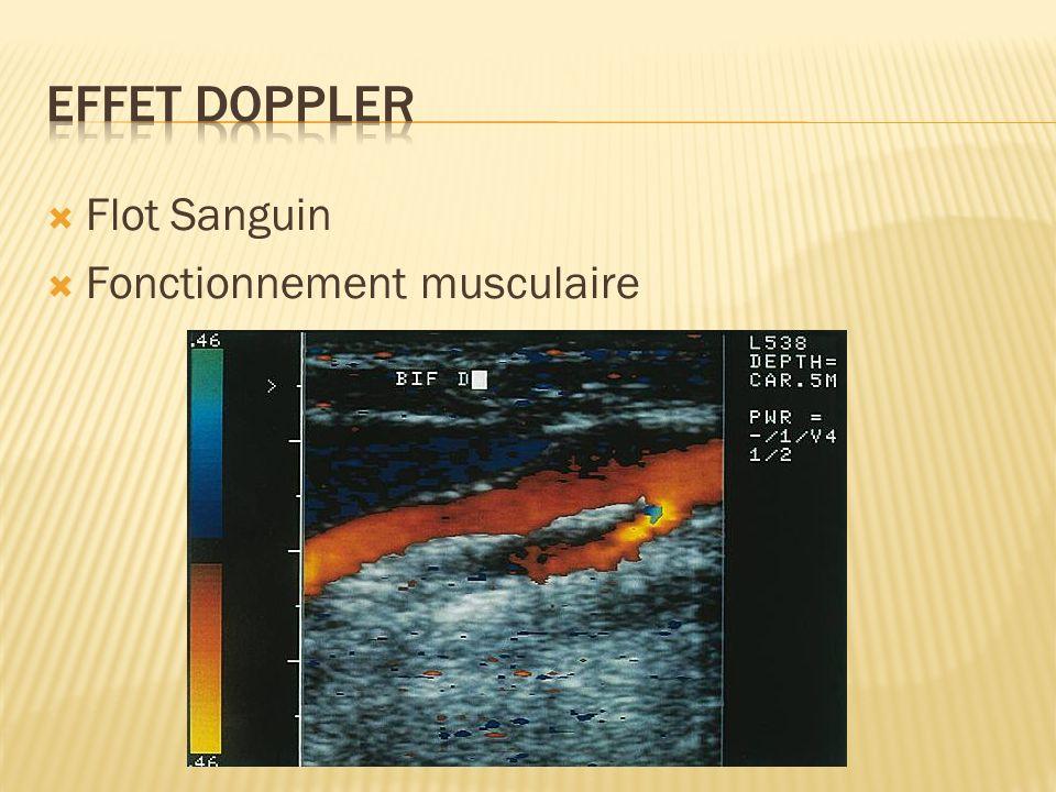 Effet Doppler Flot Sanguin Fonctionnement musculaire