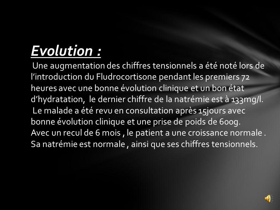 Evolution :