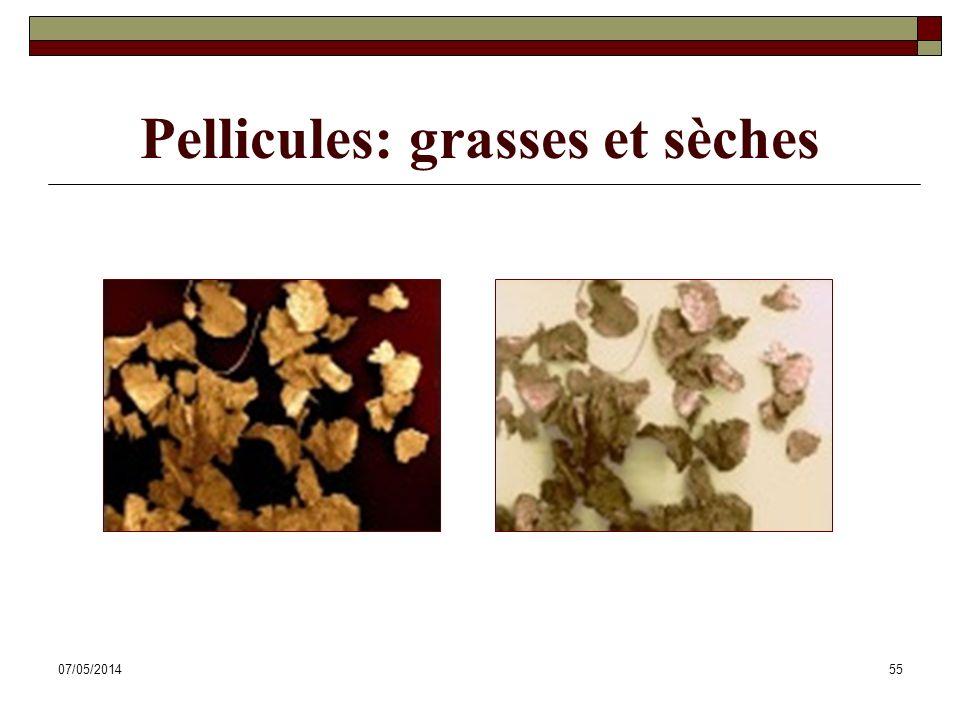 Pellicules: grasses et sèches