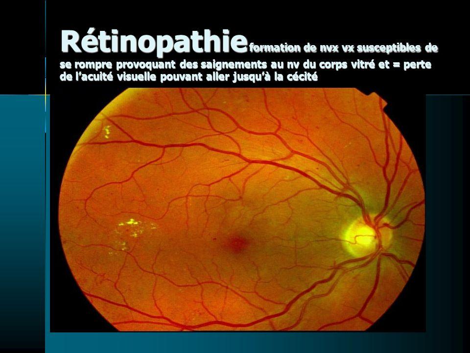 Rétinopathie formation de nvx vx susceptibles de se rompre provoquant des saignements au nv du corps vitré et = perte de l'acuité visuelle pouvant aller jusqu'à la cécité