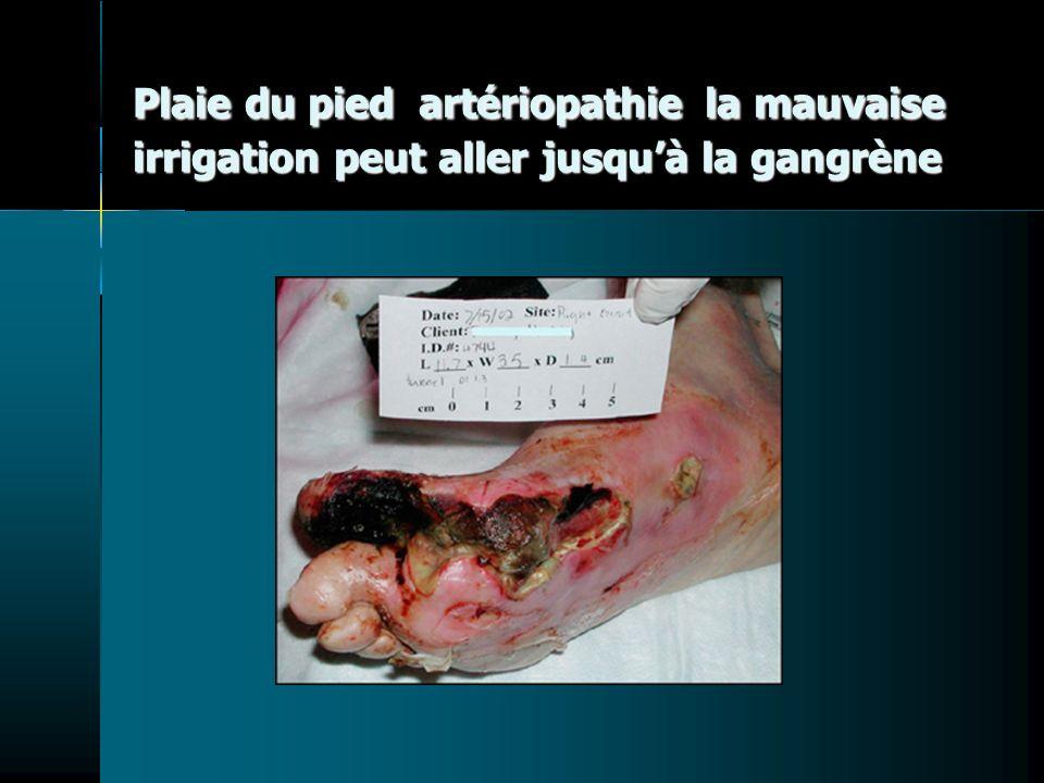 Plaie du pied artériopathie la mauvaise irrigation peut aller jusqu'à la gangrène