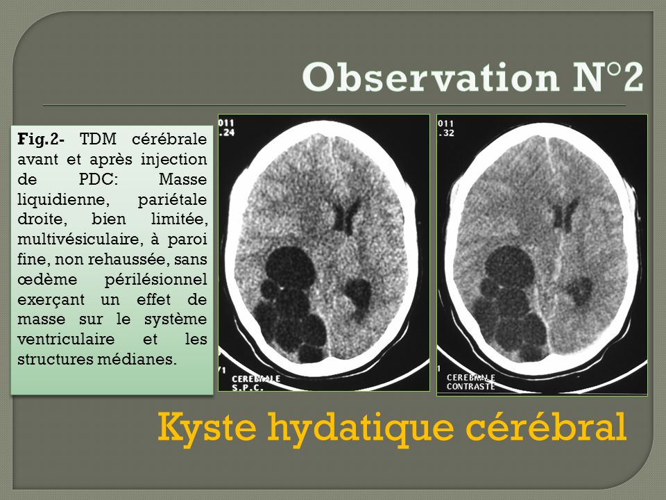 Observation N°2 Kyste hydatique cérébral
