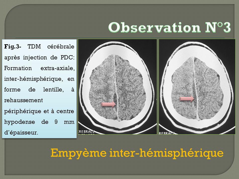 Empyème inter-hémisphérique