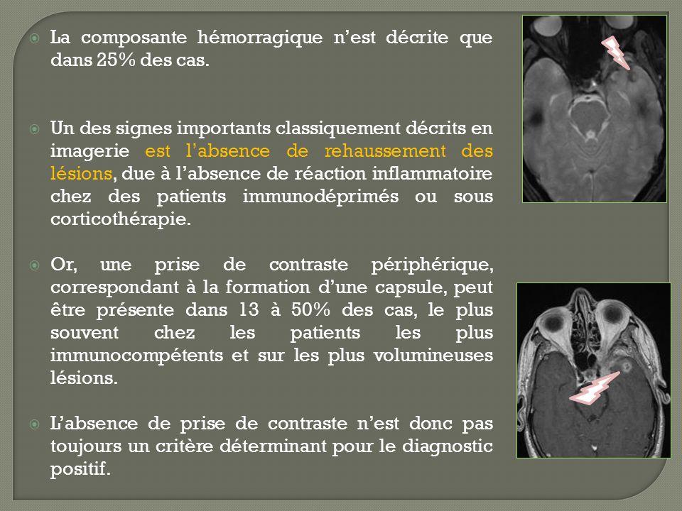La composante hémorragique n'est décrite que dans 25% des cas.