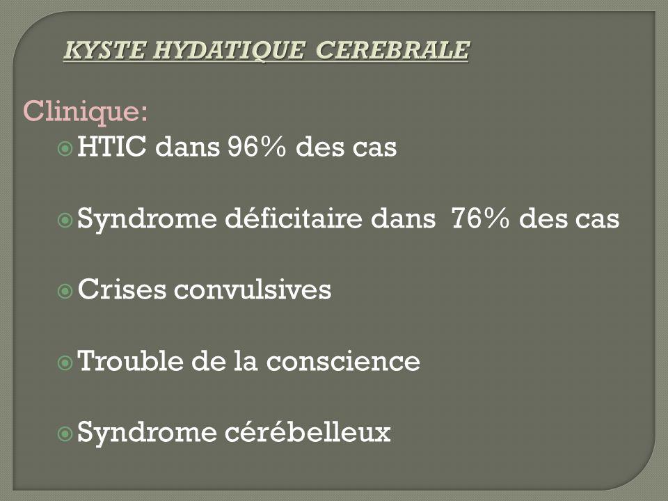 Syndrome déficitaire dans 76% des cas Crises convulsives