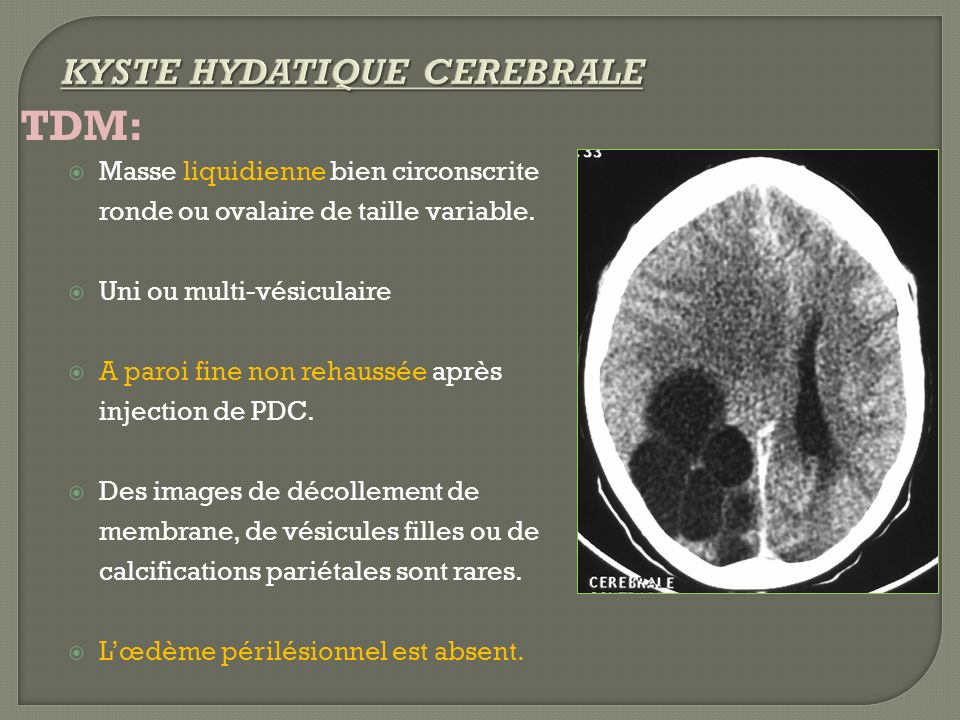 TDM: KYSTE HYDATIQUE CEREBRALE