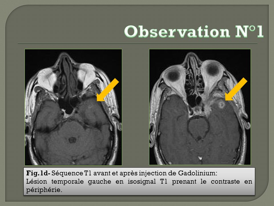 Observation N°1 Fig.1d- Séquence T1 avant et après injection de Gadolinium: