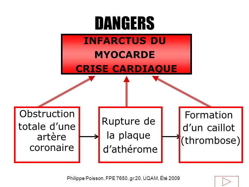 DANGERS INFARCTUS DU MYOCARDE CRISE CARDIAQUE Obstruction Formation