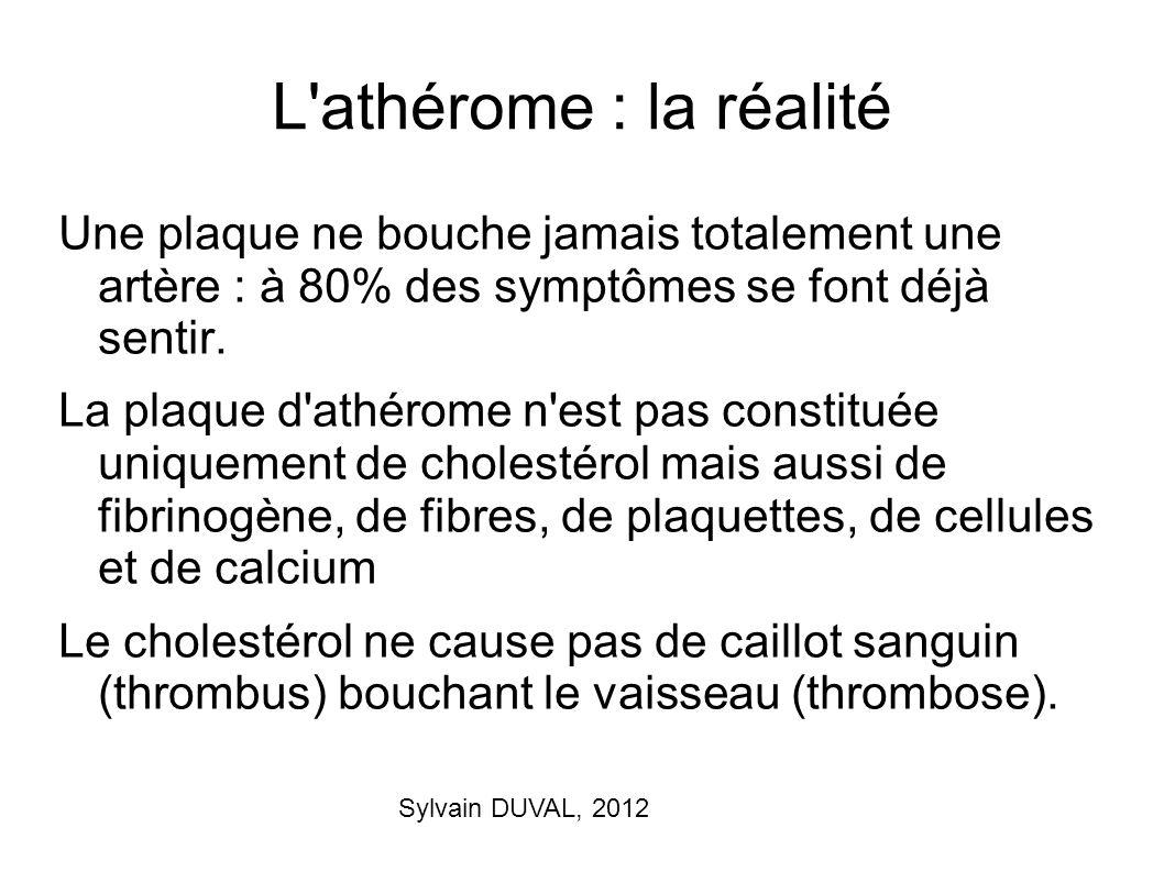 L athérome : la réalité Une plaque ne bouche jamais totalement une artère : à 80% des symptômes se font déjà sentir.