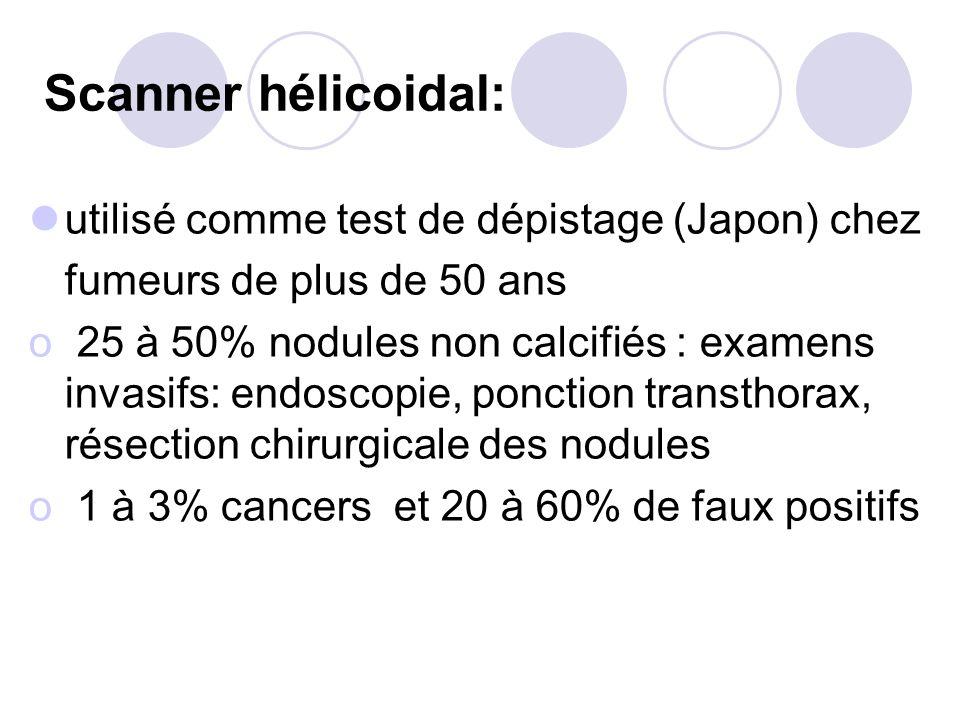 Scanner hélicoidal: utilisé comme test de dépistage (Japon) chez