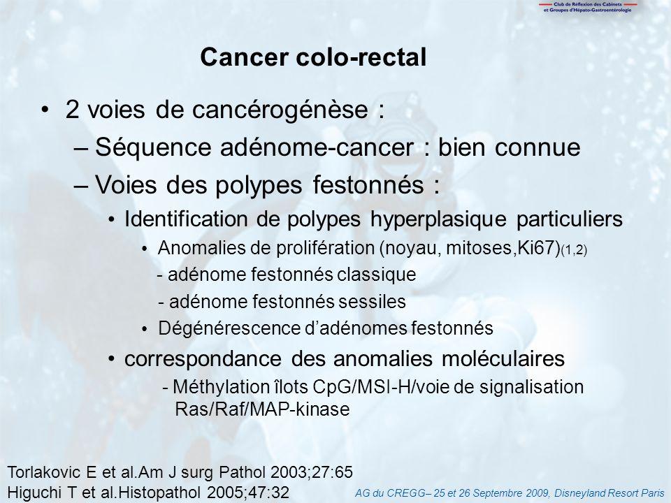 2 voies de cancérogénèse : Séquence adénome-cancer : bien connue