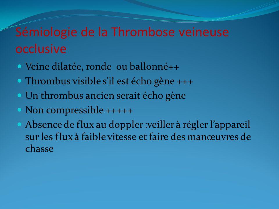 Sémiologie de la Thrombose veineuse occlusive