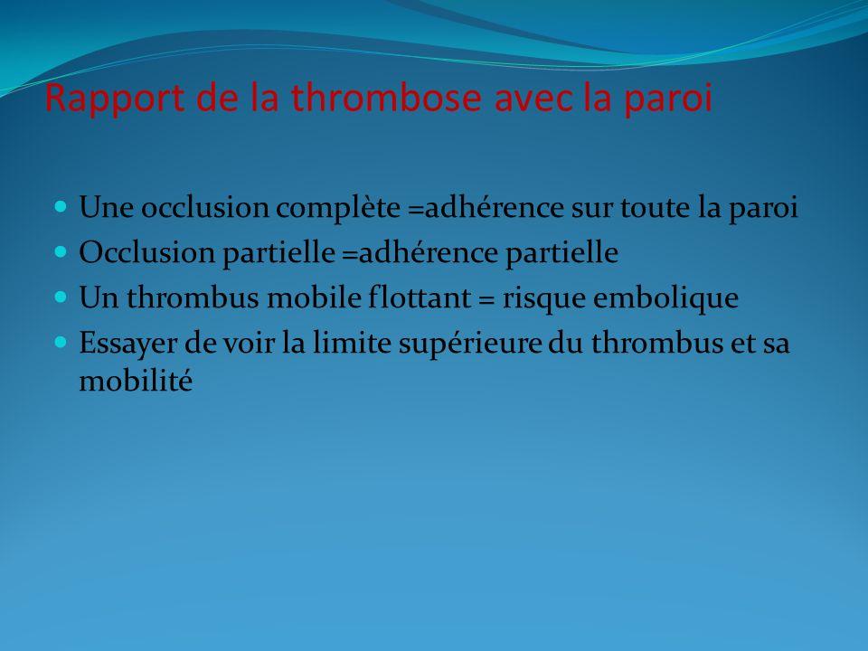 Rapport de la thrombose avec la paroi
