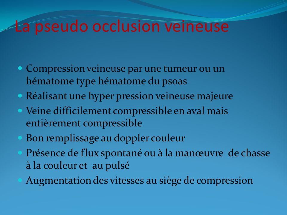 La pseudo occlusion veineuse