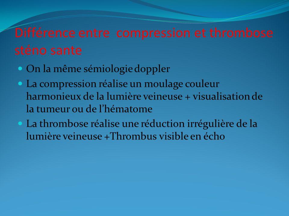 Différence entre compression et thrombose sténo sante