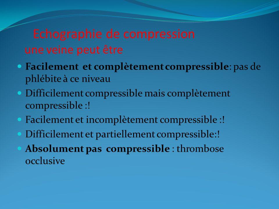 Echographie de compression une veine peut être