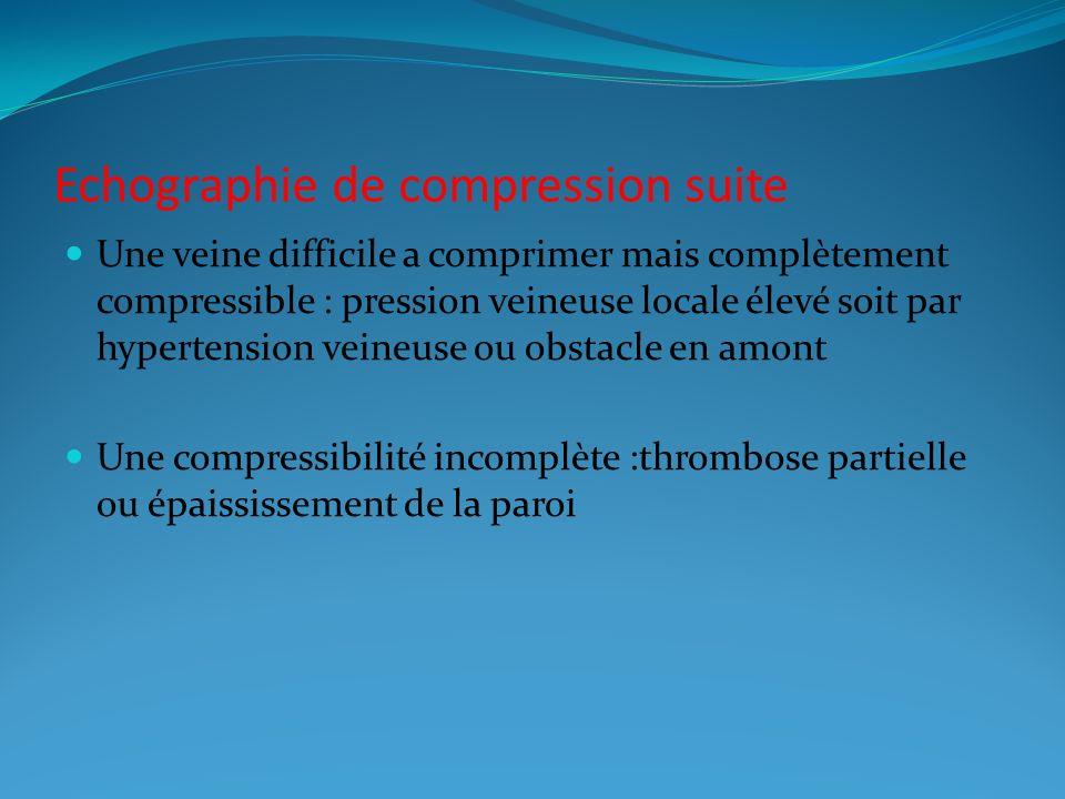 Echographie de compression suite
