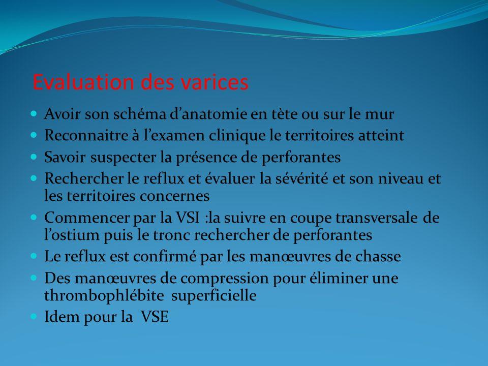 Evaluation des varices