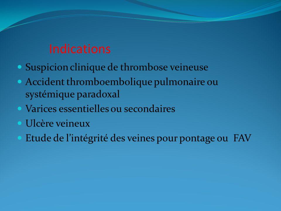 Indications Suspicion clinique de thrombose veineuse