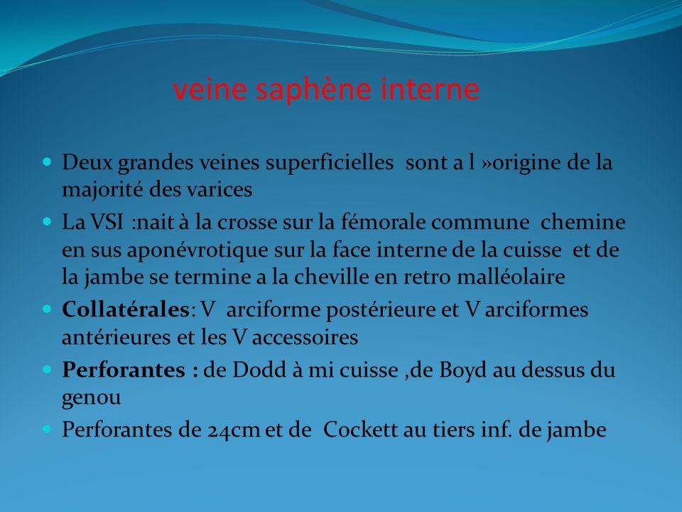 veine saphène interne Deux grandes veines superficielles sont a l »origine de la majorité des varices.