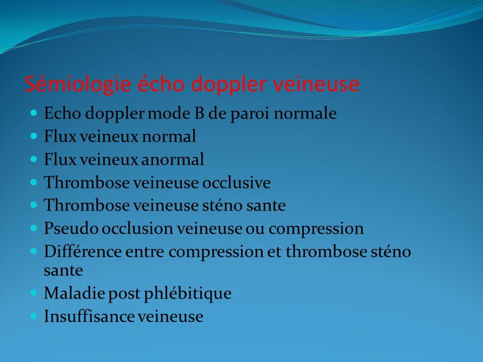 Sémiologie écho doppler veineuse