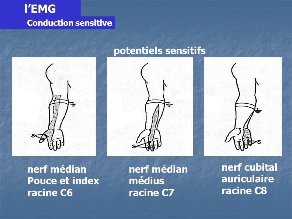 l'EMG nerf médian Pouce et index racine C6 médius racine C7