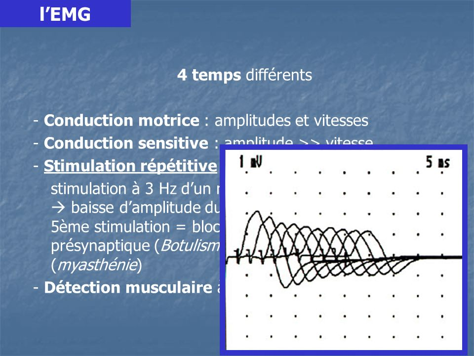 l'EMG - Conduction motrice : amplitudes et vitesses