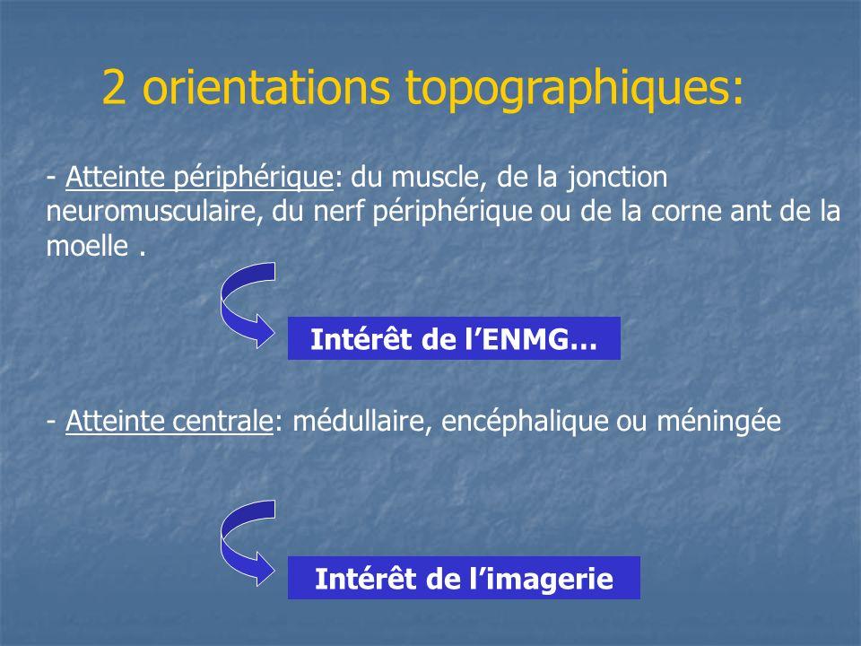 2 orientations topographiques: