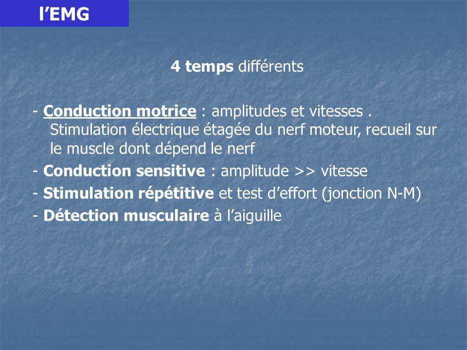 l'EMG 4 temps différents.