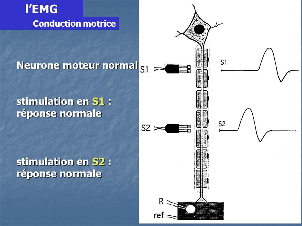 l'EMG Neurone moteur normal stimulation en S1 : réponse normale