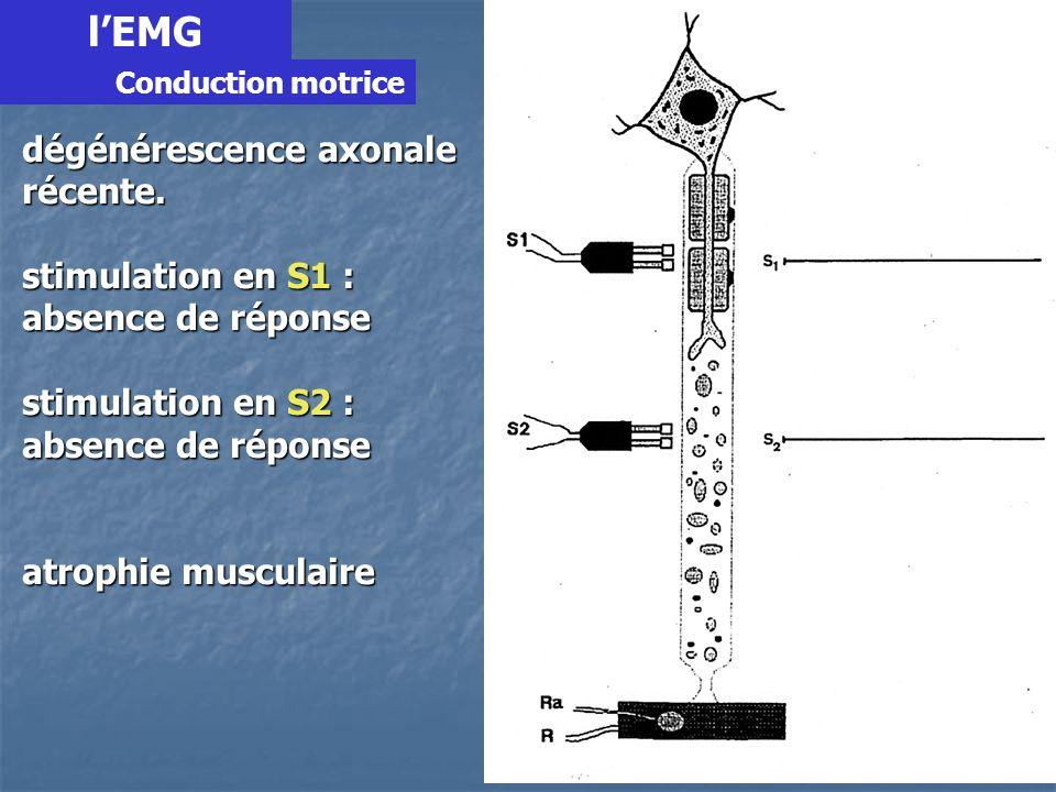 l'EMG dégénérescence axonale récente. stimulation en S1 :