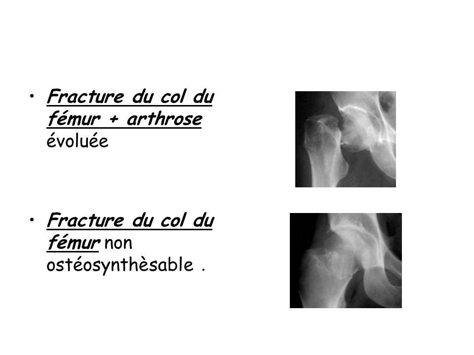 Fracture du col du fémur + arthrose évoluée