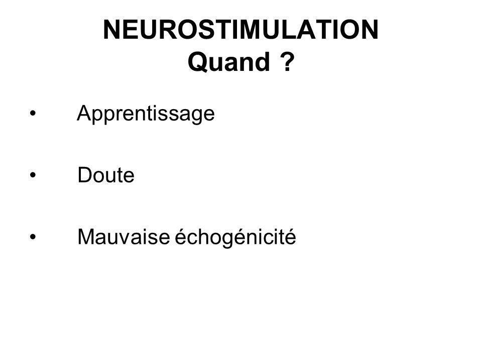 NEUROSTIMULATION Quand