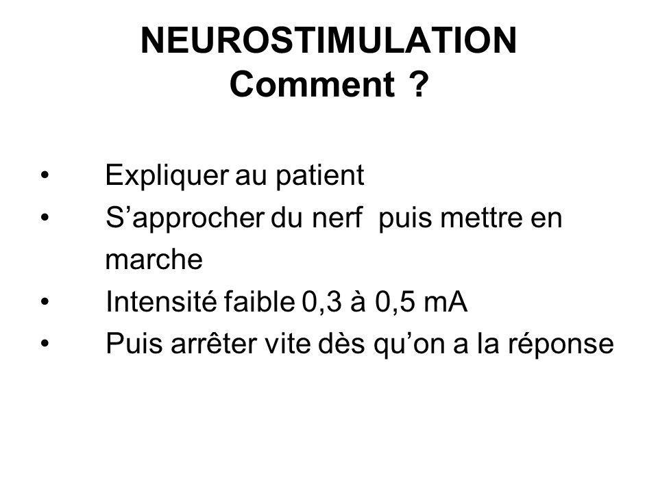 NEUROSTIMULATION Comment